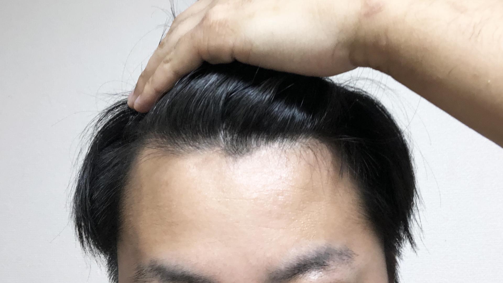 【薄毛の前兆】ハゲてきたら何をすればいい?進行を止めるには?